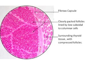 Follicular Adenoma- Thyroid