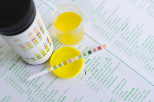 Urine Analysis: Common Questions