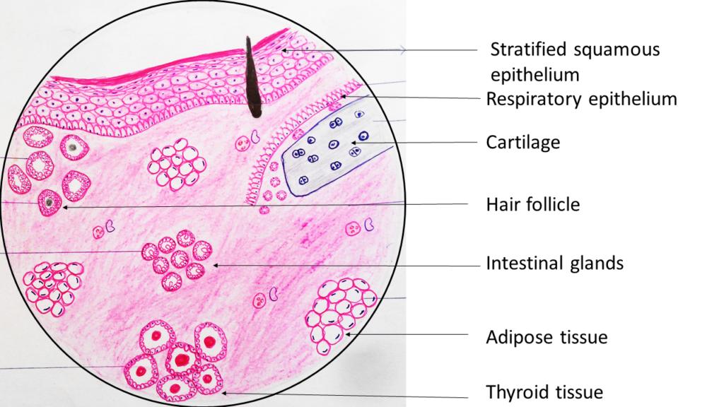 dysgerminoma: ovary