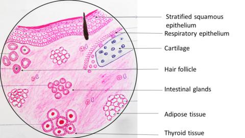 Benign Cystic Teratoma : Ovary