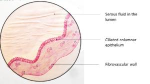 Serous Cystadenoma – Ovary