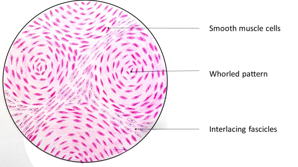 leiomyoma - uterus