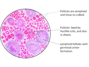 Hashimotos Thyroiditis