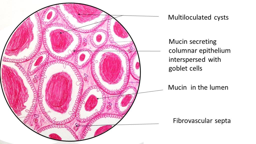mucinous cystadenoma ovary