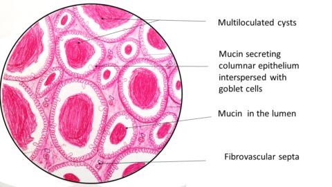 Mucinous Cystadenoma- Ovary