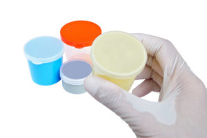Sputum Analysis: Common Questions
