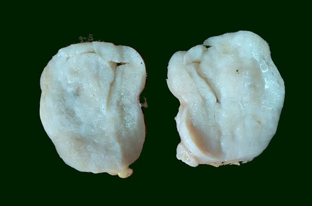 fibroadenoma gross