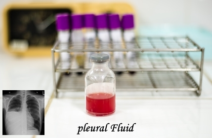 Pleural Fluid Analysis