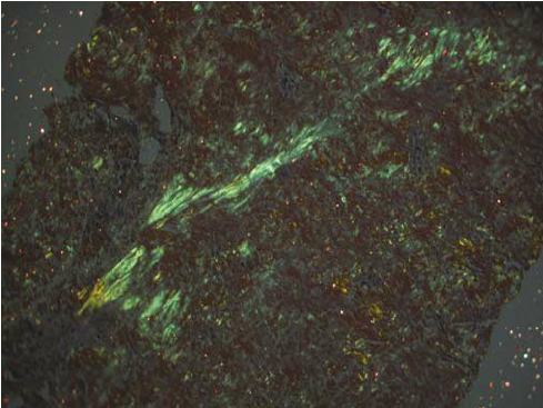 figure-5-apple-green-birefringence-of-the-congo-red-positive-amyloid-material-of-the