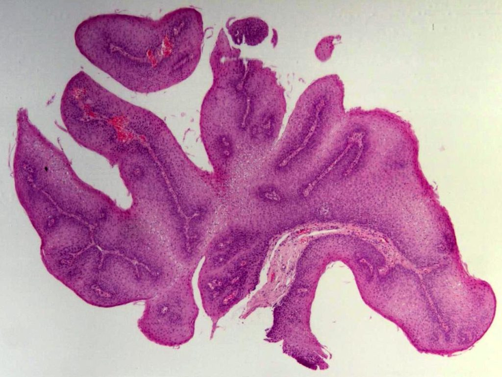 squamous_papilloma_of_the_esophagus_he_1
