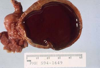chocolate-cysts