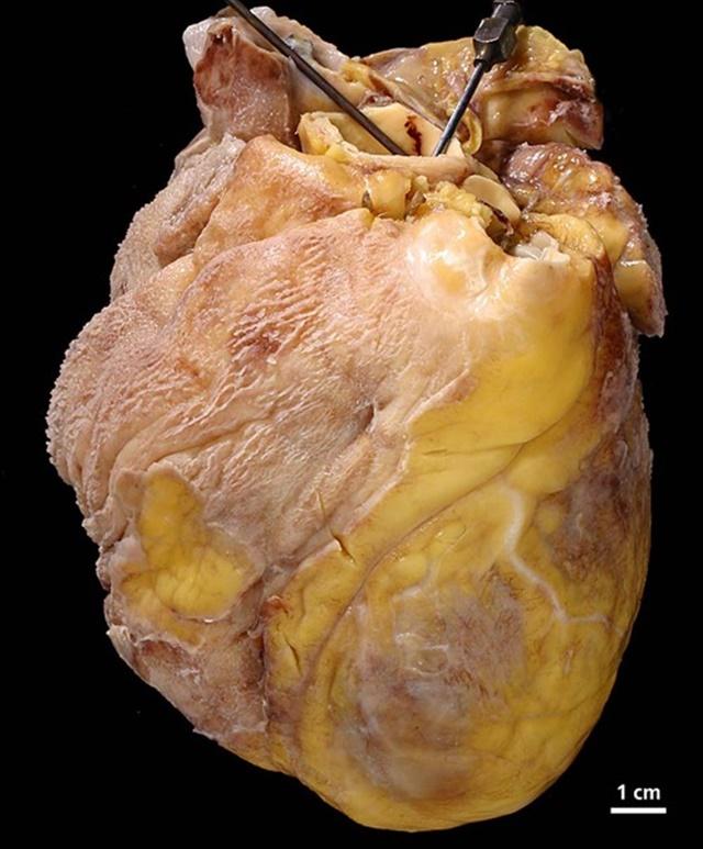 2-fibrinous-pericarditis