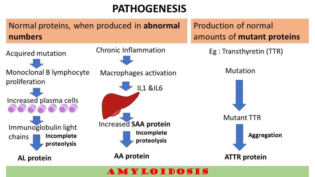 Amyloidosis Part 2 Pathogenesis Amp Classification