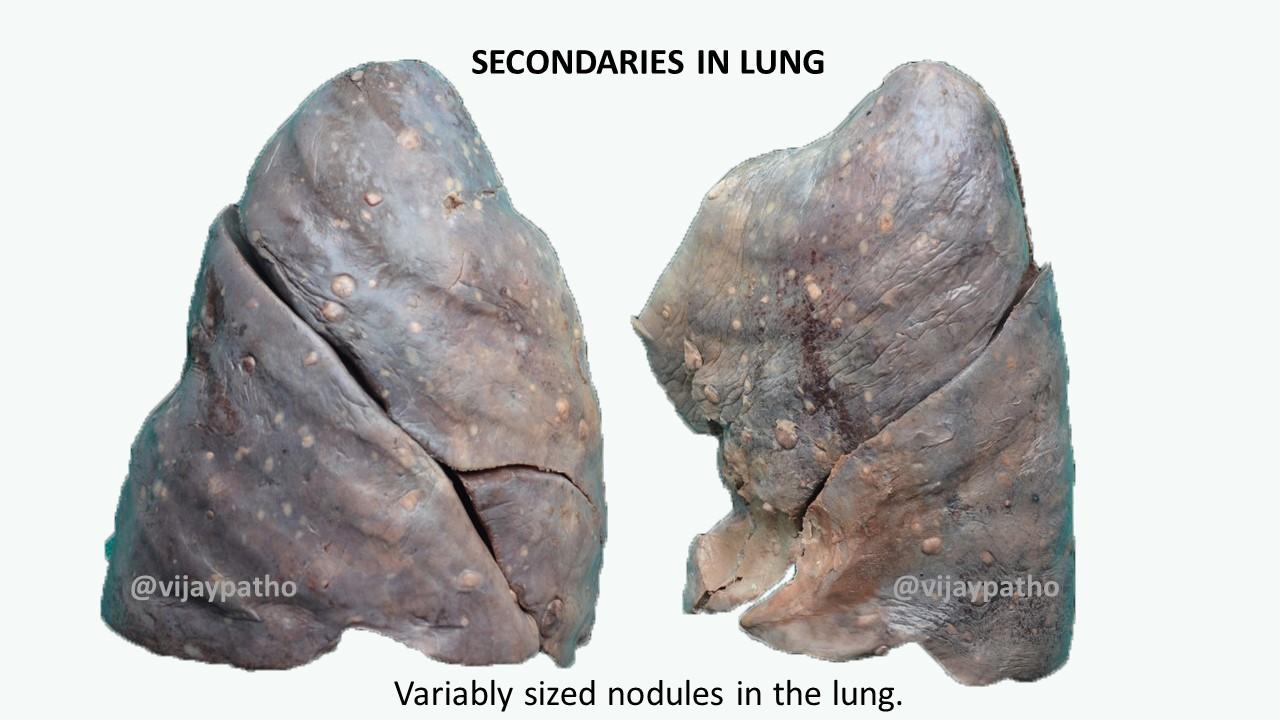 SECONDARIES / METASTATIC DEPOSITS IN LUNG