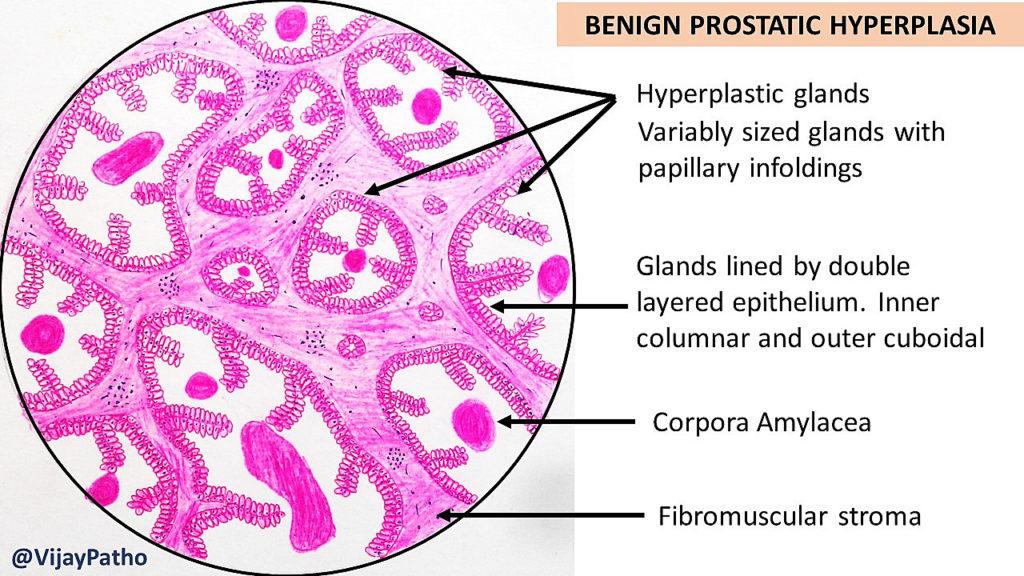prostatic hyperplasia histology)