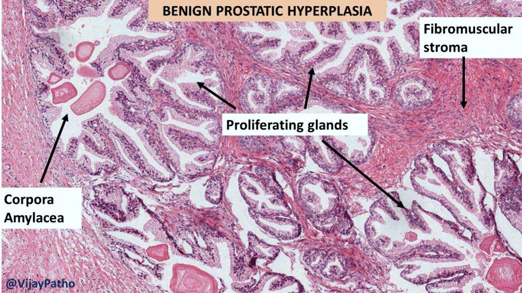 benign prostatic hyperplasia pathology outlines A prosztatitis kezelése fiatal korban