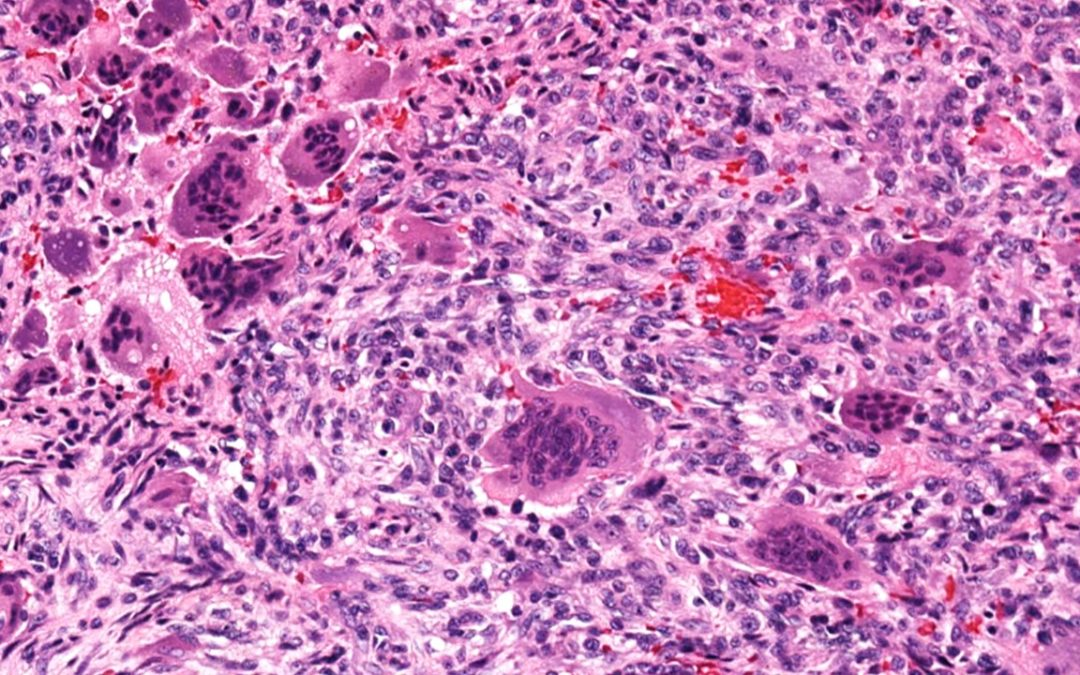 GIANT CELL TUMOR – BONE