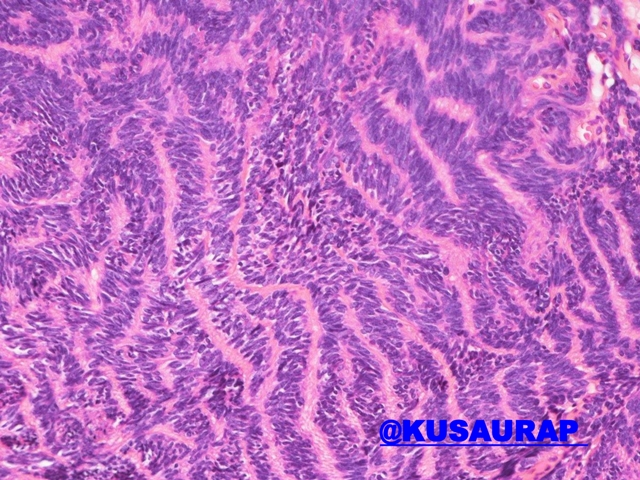RIPPLED PATTERN  #patternsinhistopathology