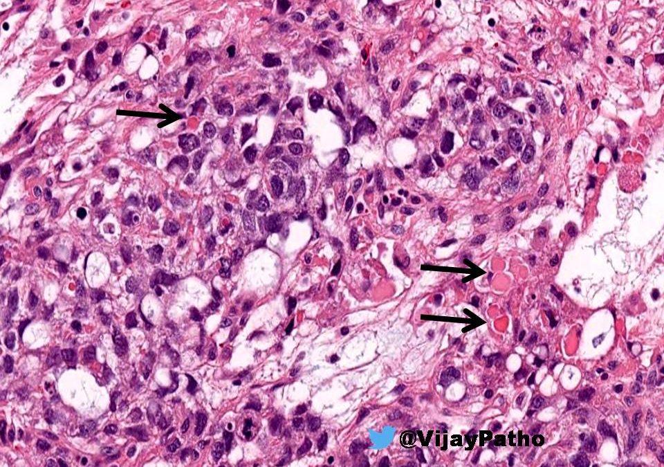 Hyaline Globules