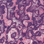 PLEXIFORM PATTERN  #patternsinhistopathology