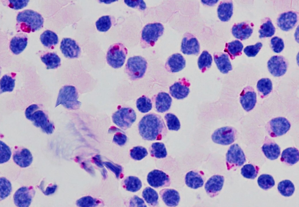 CYTOCHEMICAL STAINS IN HEMATOLOGICAL NEOPLASMS.